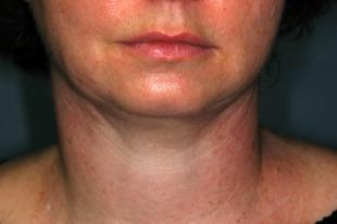 Before and After Chin and Neck 3
